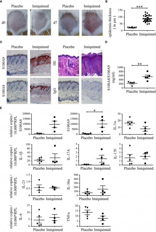 frontiers interleukin 17 promotes expression of alarmins s100a8 and s100a9 during the inflammatory r